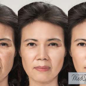 Laser skin tightening treatment for a youthful look