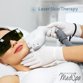 Feel Comfortable in Your Own Skin With Laser Skin Treatment