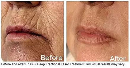 erbium fractional laser before and after