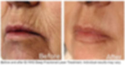 Fractional laser treatment before and after