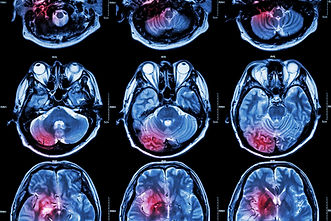 MRI image of stroke or traumatic brain injury
