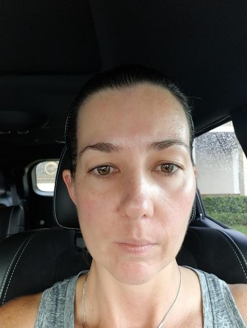 After facial