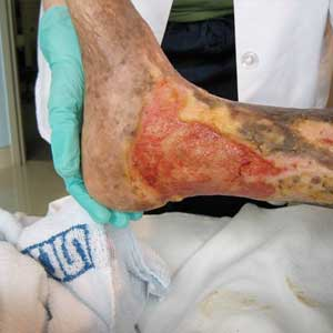 Lower Extremity Ulcer
