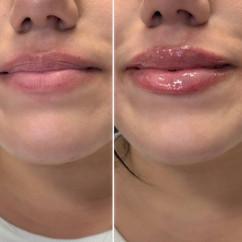 lips. beautiful lips.