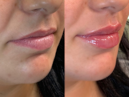 Is the LIP FLIP right for you?
