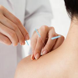 shoulder acupuncture.png