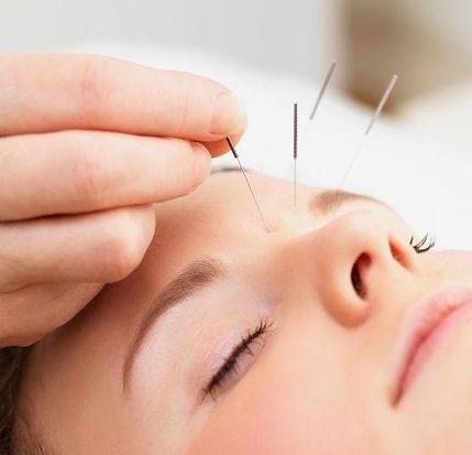 kids acupuncture.jpg