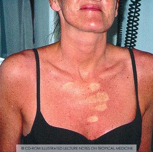 Rash of dengue/chikungunya/Zika/others