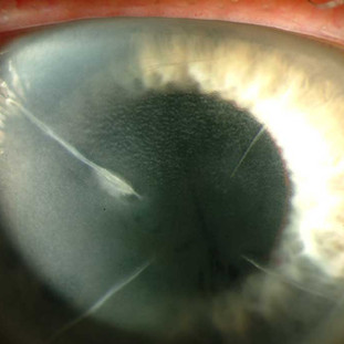 Pseudomonas keratitis in the area of past radial keratotomy