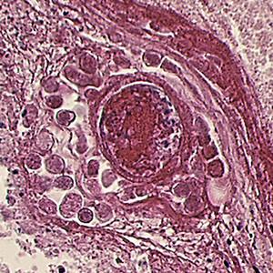 Balamuthia sp. in brain tissue