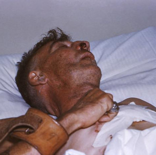 Rabies encephalitis