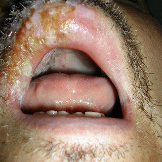 Varicella zoster, palate, lip, and nose
