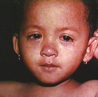 Conjunctivitis due to measles