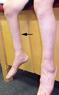 Atrophied limb due to permanent paralysis (polio)