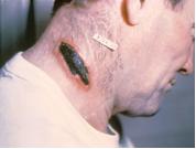 Cutaneous anthrax