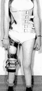 Post-polio paralysis often required supportive braces