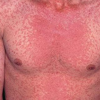 Measles
