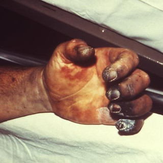 Distal necrosis caused by plague