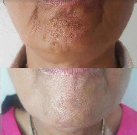 2 Areas Anti-Wrinkle
