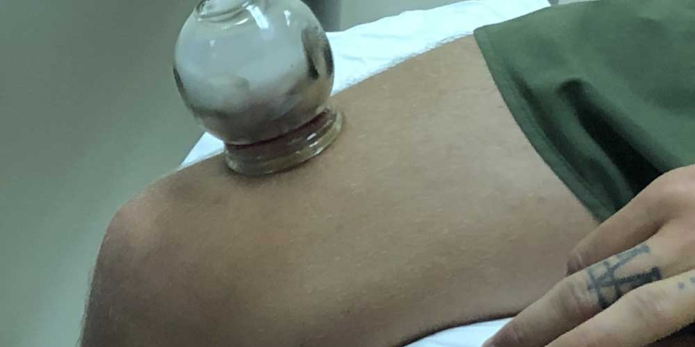 Expert Cupping Therapy