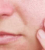 Biovolen Harzsalbe bei großen Poren