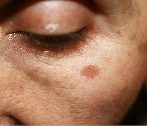 Biovolen Kressesalbe gegen Altersflecken