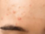 Unreine Haut im Alter