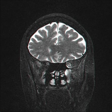 מנינגיומות ליד עצבי הראייה