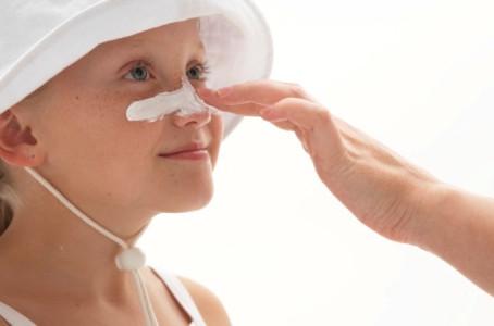Criança que usa protetor solar tem menor risco de câncer de pele na fase adulta