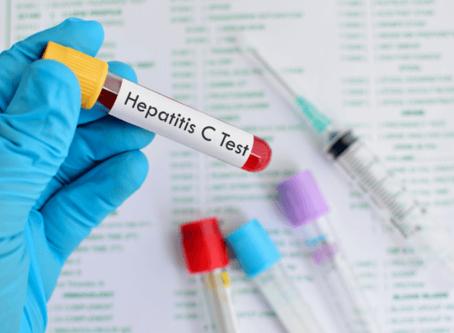 Estima-se que 1,5 milhão de brasileiros têm hepatite C e não sabem