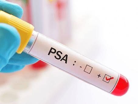 DNA Center oferece exames gratuitos para auxiliar o diagnóstico de câncer de próstata