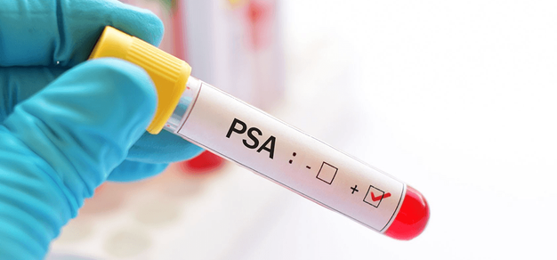 prueba de PSA gratuita para el cáncer de próstata