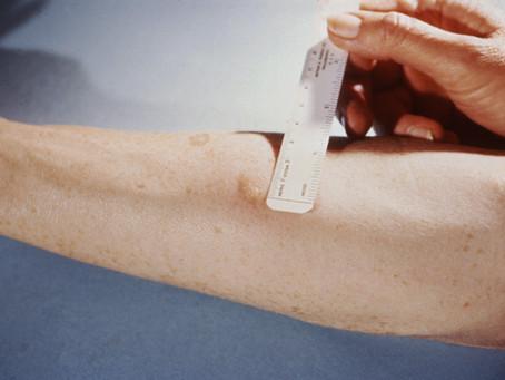 Como é feito o exame da tuberculose e resultados