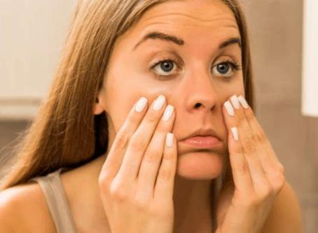 Olheiras: causas, como tratar e prevenir que elas apareçam