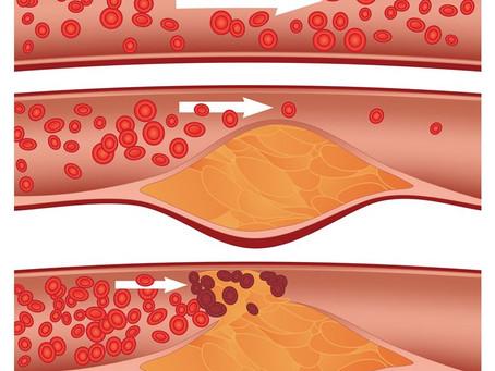Colesterol: você conhece os mitos e verdades sobre ele?