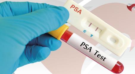 DNA Center oferece exames gratuitos para diagnosticar câncer de próstata