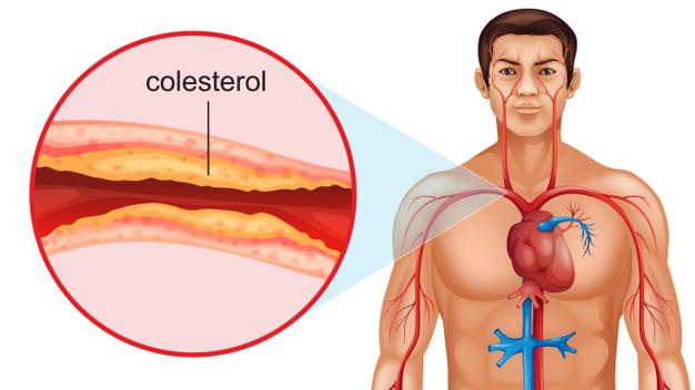 colesterol muito alto o que fazer