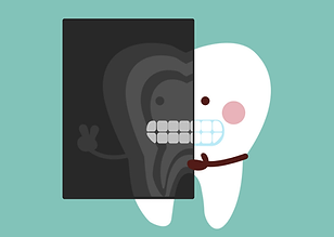 dentist-clipart-tooth-xray-2.png
