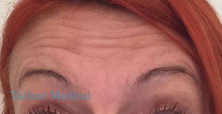 Before Botox Tallent Medical