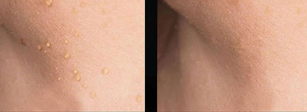 Cryopen Skin Tags Before and After