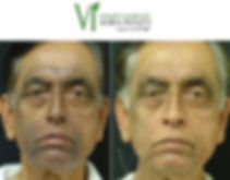 Tallent Medical VI Peel
