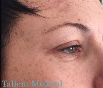 After Botox Tallent Medical