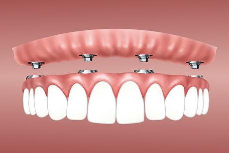 overdenture-implants.jpg