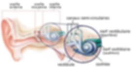 Maladie de Ménière oreille interne vestibule