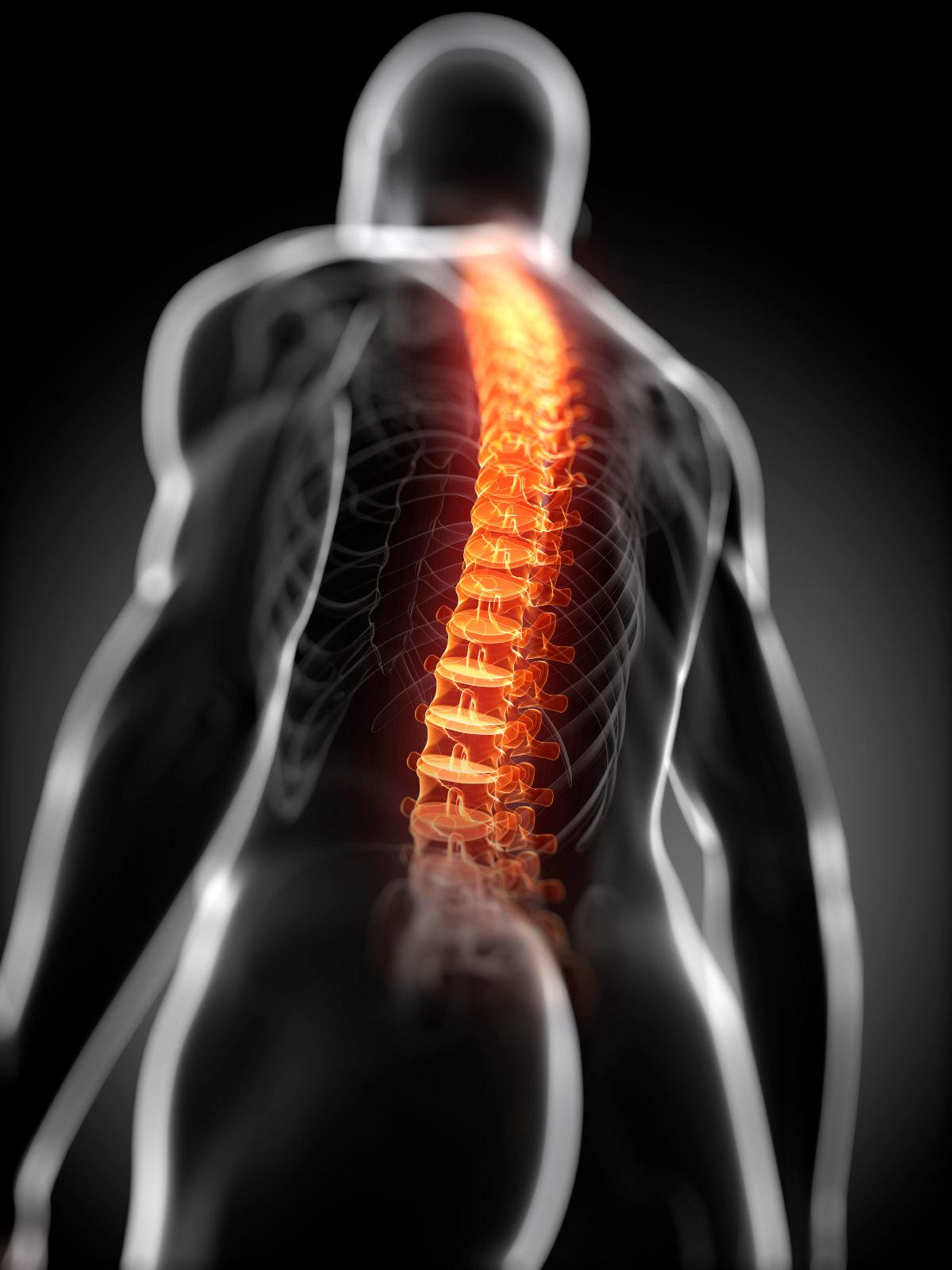 Lutte contre le mal de dos