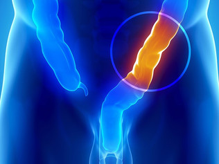 Saiba como prevenir o câncer intestinal
