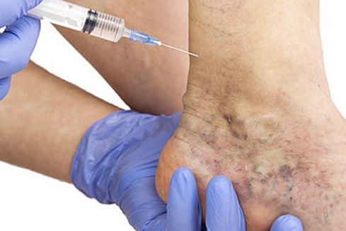 cosmetics-sclerotherapy.jpg