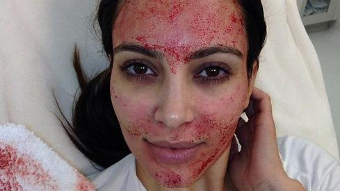 vampire-facial-social.jpg