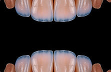 4 units dental veneers.jpg