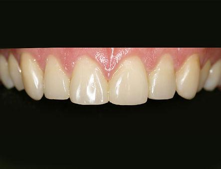 Herstelde-tanden-na-slijtage-02-.jpg